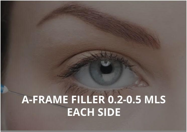 A-FRAME FILLER 0.2-0.5 MLS EACH SIDE