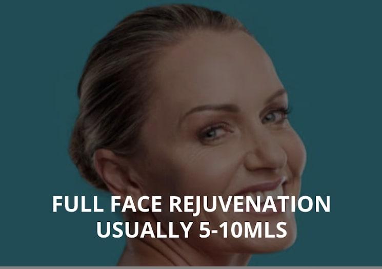 FULL FACE REJUVENATION USUALLY 5-10MLS