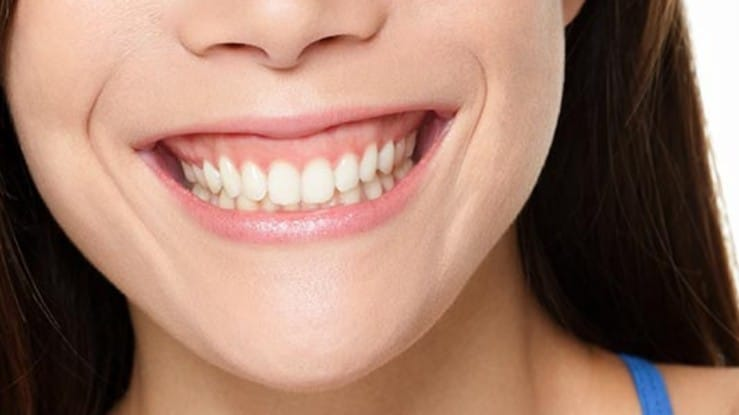 how to get rid of gummy smile in Sydney