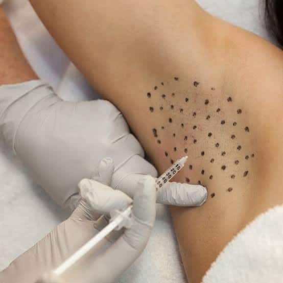 Anti wrinkle injections for hyperhidrosis or excessive sweating