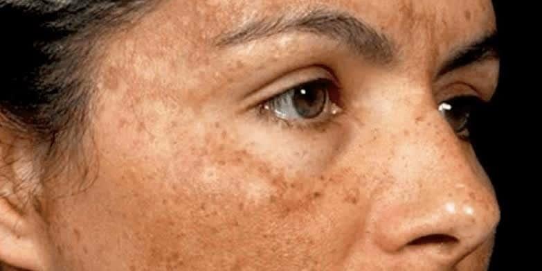 Abnormal pigmentation treatment Liverpool