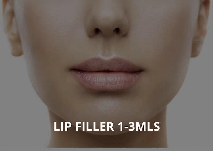 LIP FILLER 1-3MLS