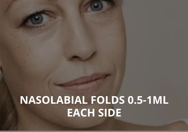 NASOLABIAL FOLDS 0.5-1ML EACH SIDE