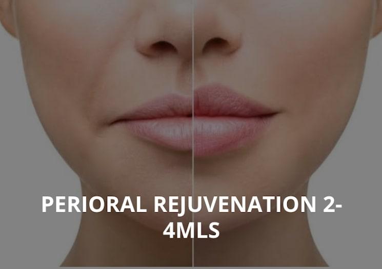 PERIORAL REJUVENATION 2-4MLS