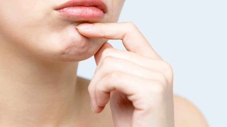 How to get rid of pebble butt chin in sydney
