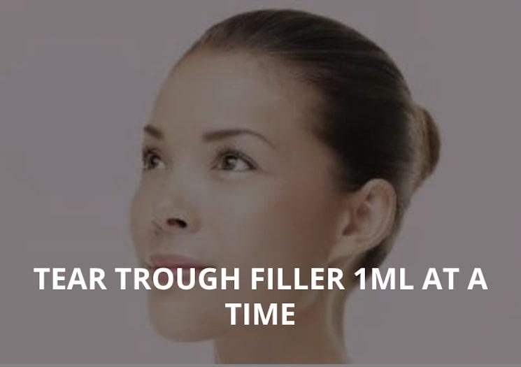 TEAR TROUGH FILLER 1ML AT A TIME