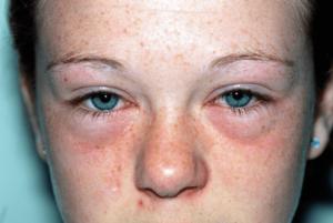 allergic rhinitis nasal treatment Sydney