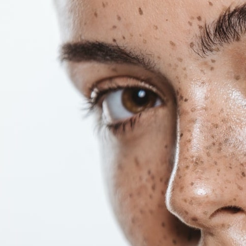 pigmentation treatments sq