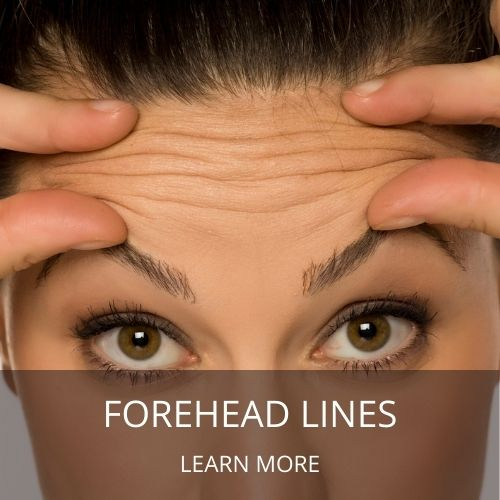 how to get rid of forehead lines