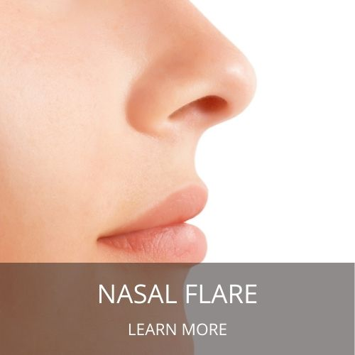 how to get rid of nasal flare stop flared nostrils