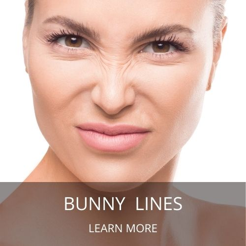 how to get rid of bunny lines