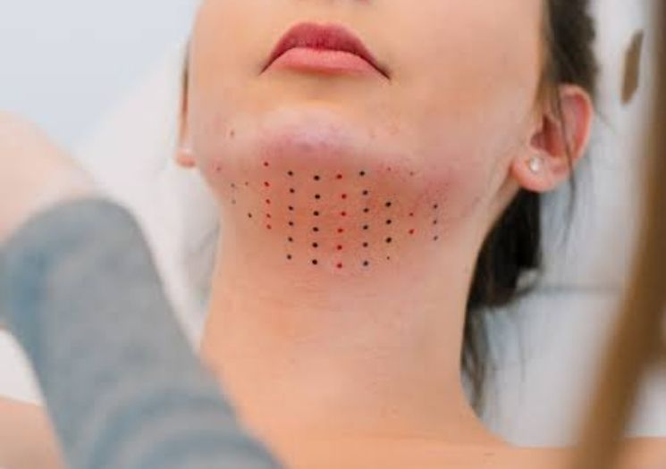 fat dissolving injections for double chin treatment