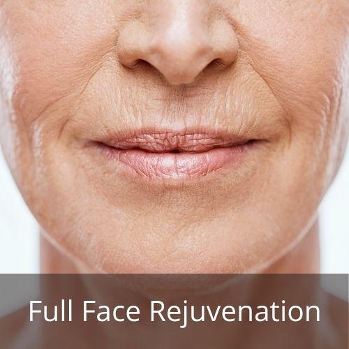 full facial rejuvenation