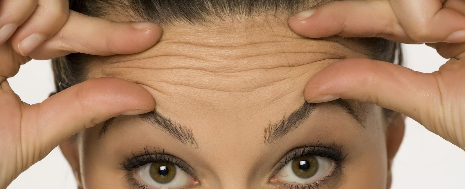 Forehead lines treatment Liverpool Sydney